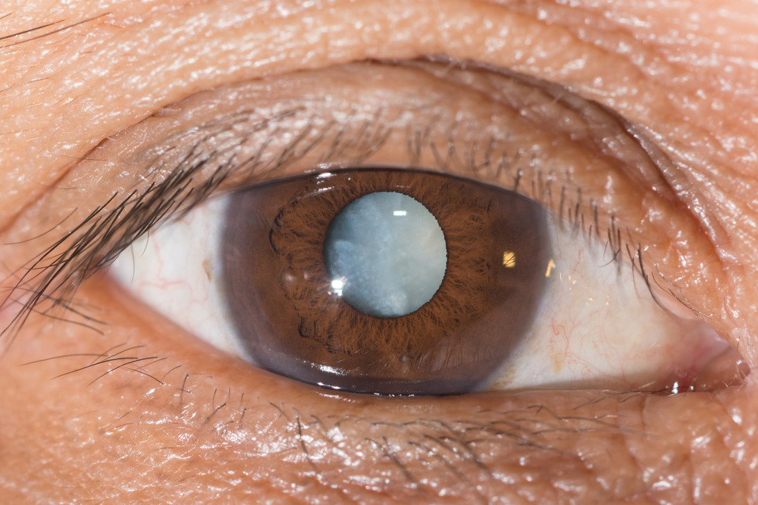 When to go for cataract surgery?